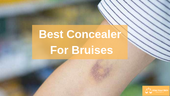 Best Concealer For Bruises